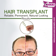 Hair Doctor in Ahmedabad for Hair Fall Problem