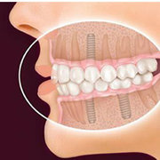 Best Dental Implants clinic in Ahmedabad - 32 Pearls Dental