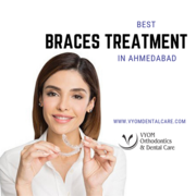 Best Orthodontist in Ahmedabad