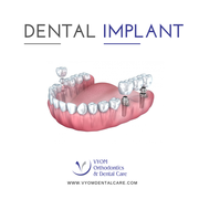 Dental implants in Ahmedabad | Best Dental Implants in Ahmedabad